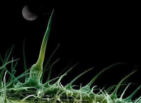 SEM: Stinging Nettle, Urtica Dioica
