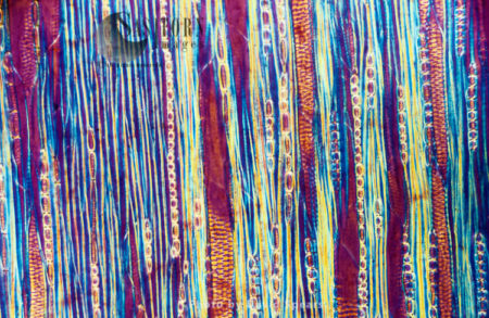 Light Micrograph (LM): A Longitudinal Section Showing Xylem Elements Of A Ribes Sp. Stem