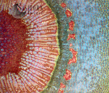 Light Micrograph (LM): A Tranverse Section Of A Stem Of A Common Or European Ash Tree (Fraxinus Excelsior)