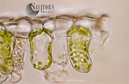 Light Micrograph (LM): Plant Cell Chloroplasts - The Site Where Photosynthesis Takes Place