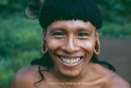 Waorani Indians: Healthy Teeth Are A Rarity Among Adult Waorani, Gabado, 1974, Ecuador